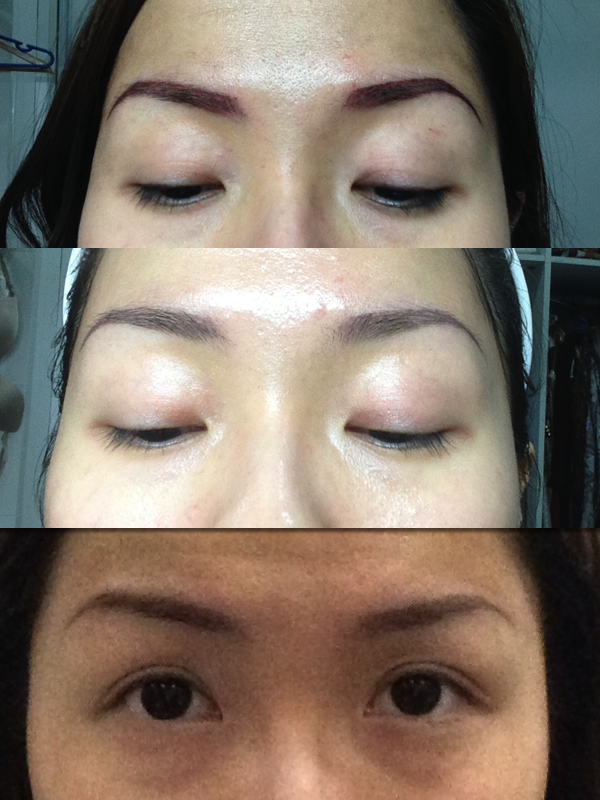 Top to bottom: Right after, 4 days after & 1 week after
